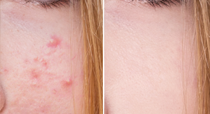 antes-despues-acne